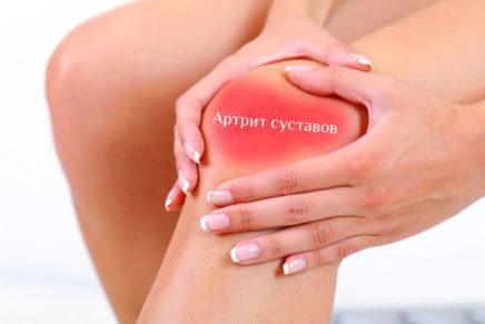Артрит суставов — лечение, симптомы, диагностика, причины
