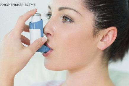 Бронхиальная астма — лечение, симптомы, приступ, помощь, профилактика