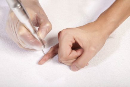 Бородавки — удаление, лечение в домашних условиях, причины