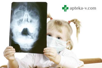 Гайморит у взрослых и детей — лечение в домашних условиях, симптомы, антибиотики