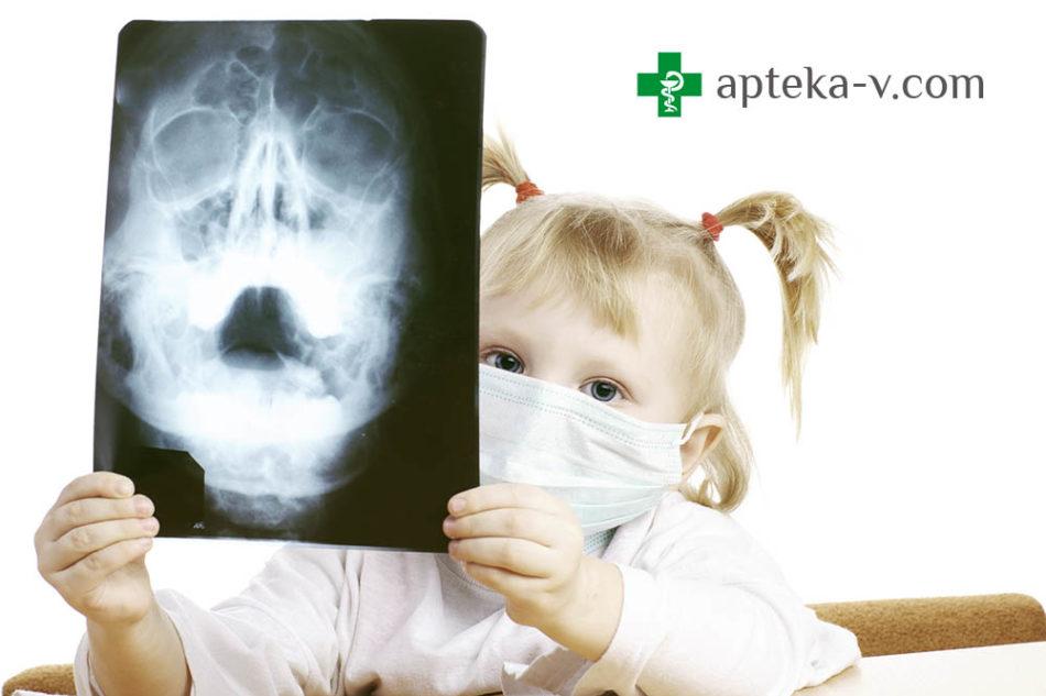 рентгеновский снимок носа