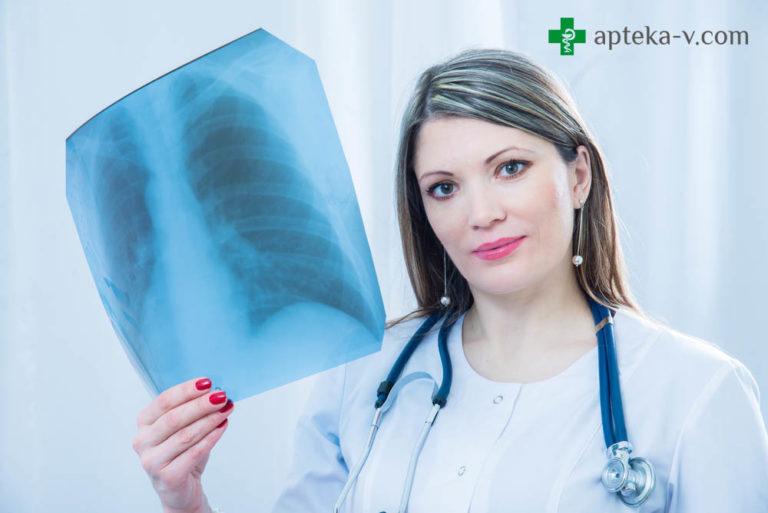рентген легких, туберкулез
