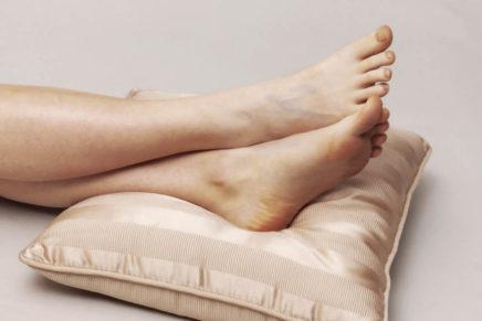 Варикозное расширение вен, Варикоз — лечение, симптомы, причины, операция
