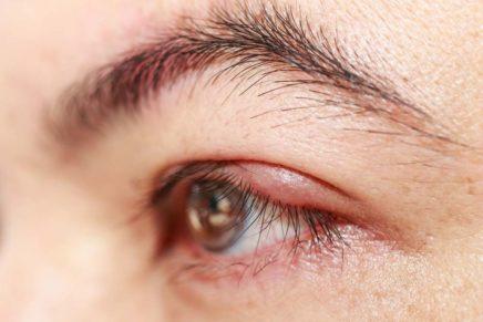 Как лечить ячмень на глазу в домашних условиях