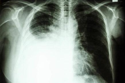 Рак легких — симптомы, стадии, признаки и лечение